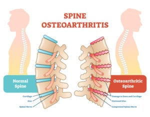 Spine Osteoarthritis - Disc Disease
