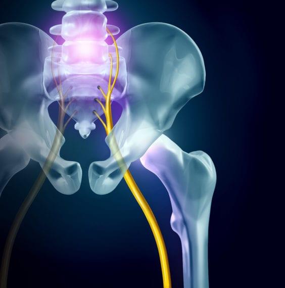 Sciatic nerve pain or sciatica