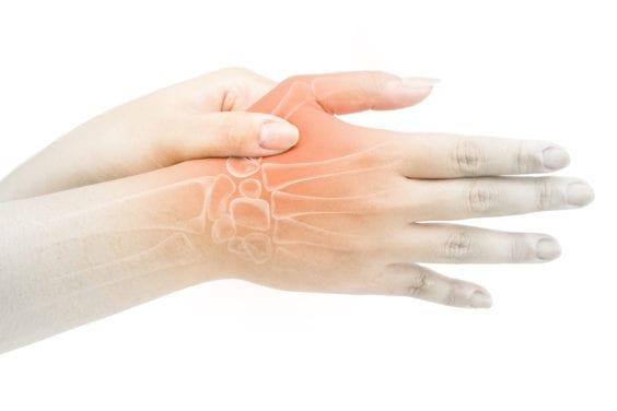 Hand Joint Osteoarthritis