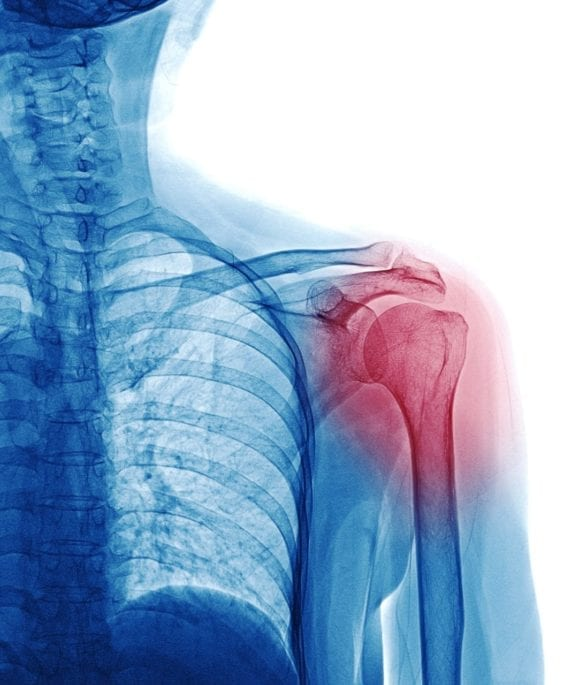 Shoulder Joint Osteoarthritis Doctor
