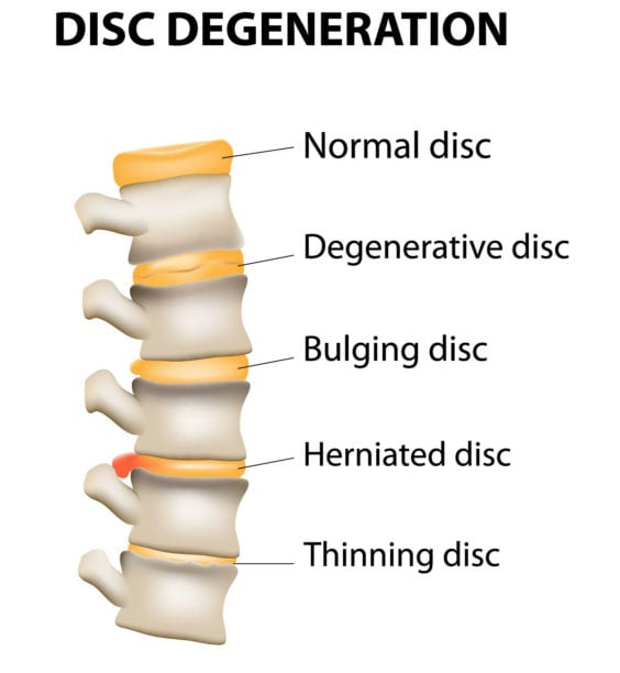 Degenerative Disc Disease - Sciatica Causes