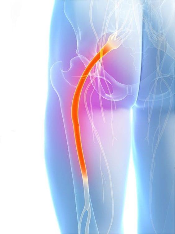 Sciatic Nerve Pain - Lumbar Radiculopathy OKC