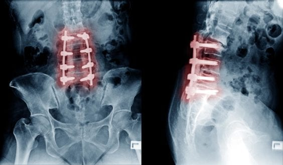 Sciatica Causes - Post Laminectomy Syndrome - Failed Back Surgery Syndrome