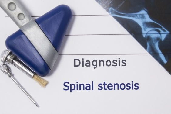 Sciatica Pain - Spinal Stenosis Diagnosis OKC
