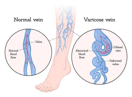 Oklahoma Varicose Vein Disease