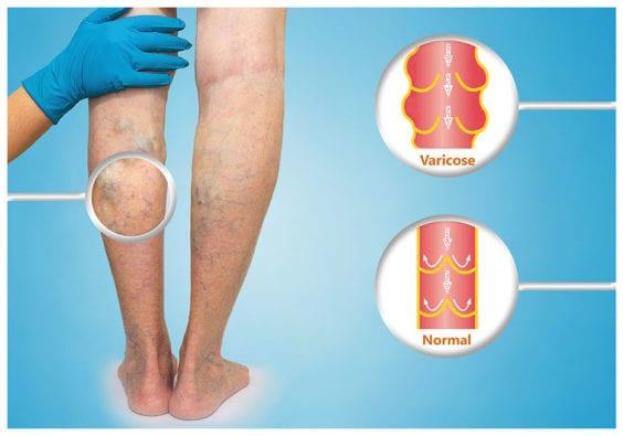 What are varicose veins Oklahoma
