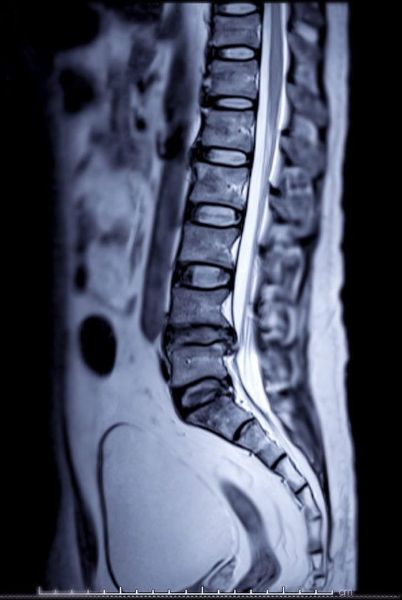 After Spine MRI - Get All Your Options